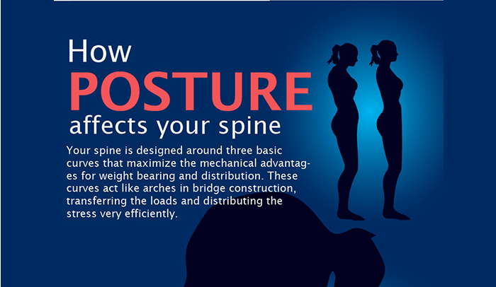6 Best Ways to Correct Bad Posture