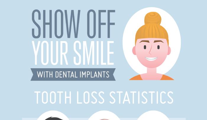 How do Dental Implants Work
