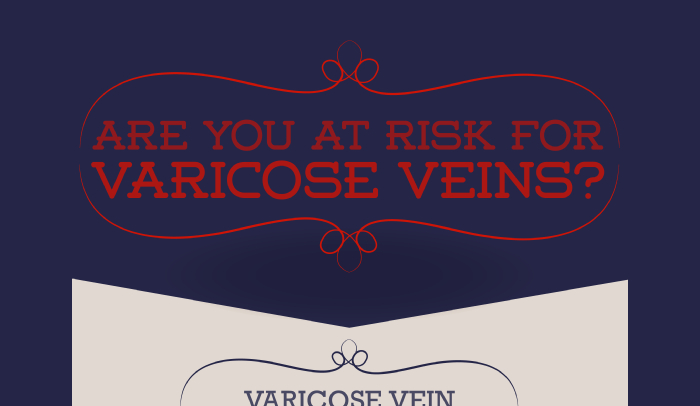 How to Prevent Varicose Veins on Legs
