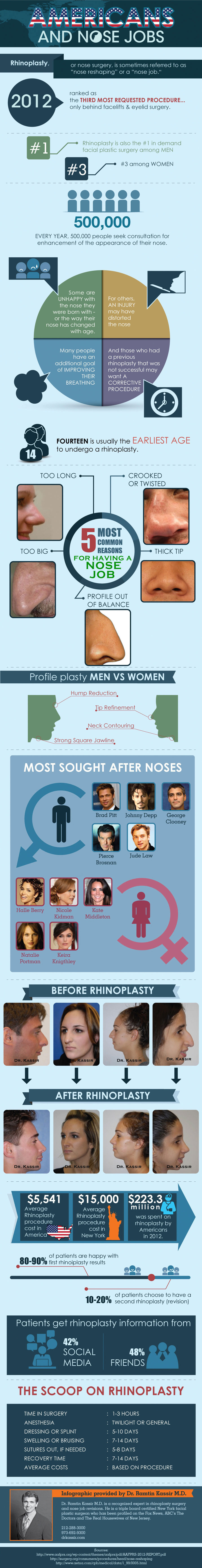Nose Jobs and Cosmetic Surgery Facts