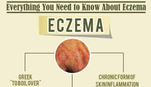 What is the Cause of Eczema