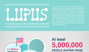 Famous People with Lupus