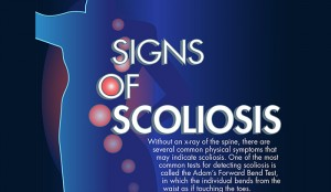 Famous People with Scoliosis