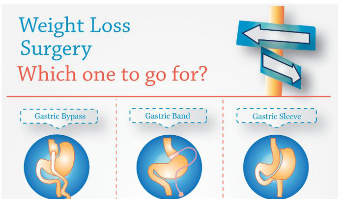 Gastric Sleeve Pros and Cons