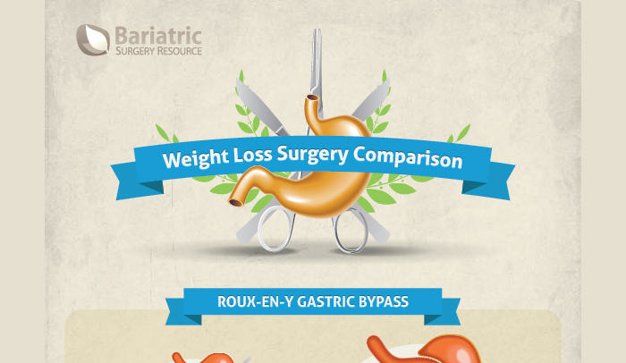 Pros and Cons of Lap Band Surgery