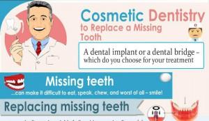 Dental Bridges Pros and Cons