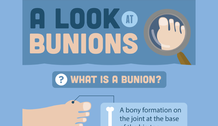 Pros and Cons of Bunion Surgery