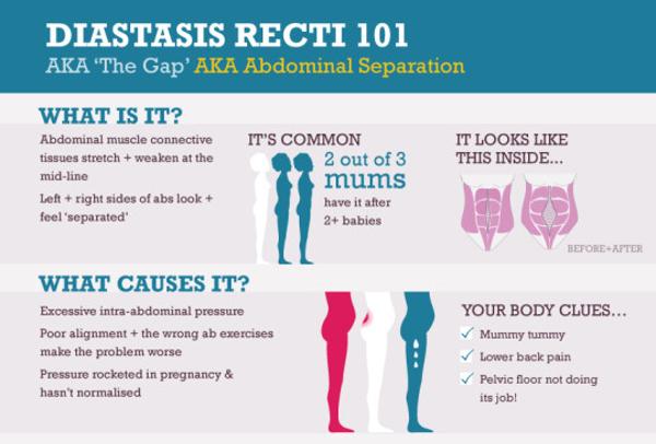 Diastasis Recti Symptoms   HRFnd