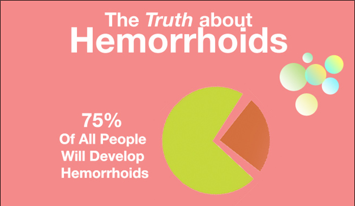 Home Remedies For External Hemorrhoids