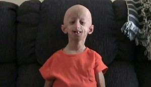 7 Interesting Facts About Progeria