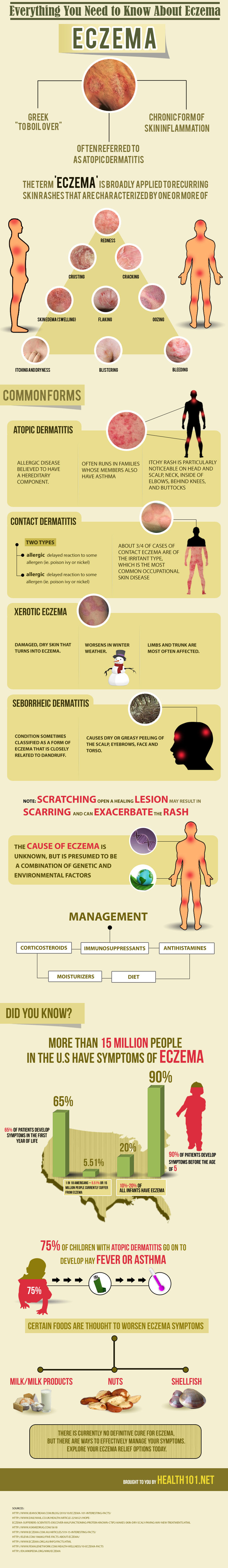 Facts About Eczema