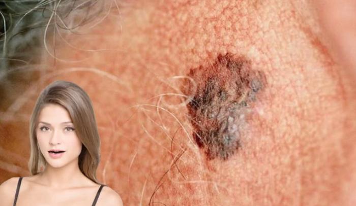 20 Amazing Nodular Melanoma Statistics