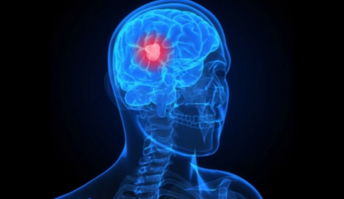 9 Interesting Facts About Brain Tumors