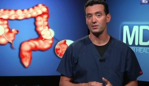 Diverticulitis vs Colon Cancer