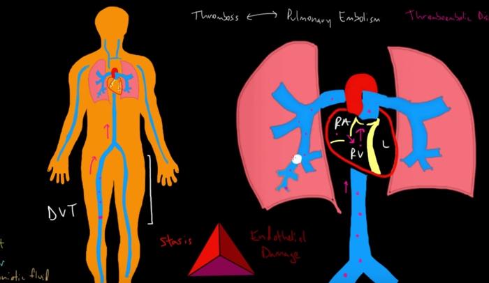 D-dimer Blood Test Results Explained